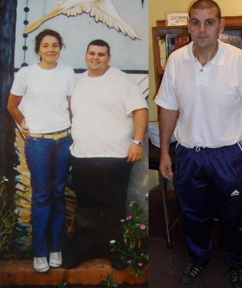 Ricardo y su esposa (izquierda), y luego de ser intervenido por su obesidad (derecha).