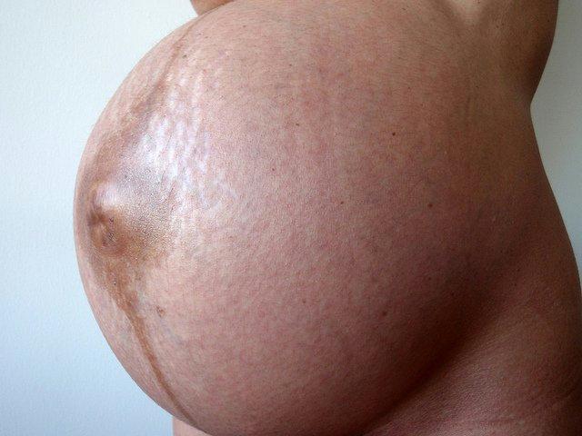 También podrán mejorar cicatrices de cesárea y estrías del embarazo.