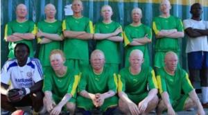 Cacerías y mutilaciones: las terroríficas supersticiones que intenta erradicar el Albino United F.C.