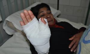 Mujer resultó con lesiones en intento de abuso