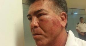 Terminó internado, con lesiones graves, el inspector atacado en la cancha de fútbol cinco