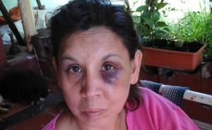 La docente baleada por su ex pareja en San Javier fue operada y sigue con pronóstico reservado
