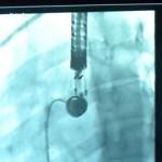 Se realizaron exitosamente dos intervenciones de cardiopatías congénitas en la provincia