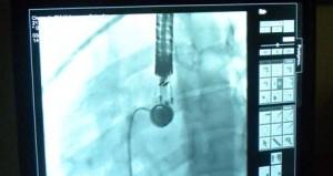 Hospital Escuela: Operaron a pacientes misioneros con patologías congénitas cardíacas a través de la técnica de cateterismo