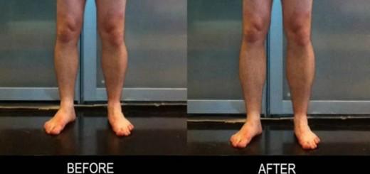 La dolorosa operación para alargar las piernas que gana popularidad en todo el mundo