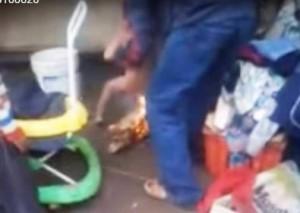 Indignante: Un hombre castigaba a su hijastro de tres años con fuego por hacerse pis en la cama