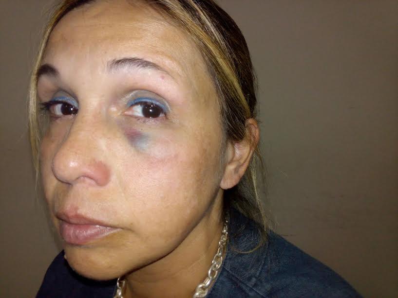 La doctora agredida por una paciente dijo que esta situación la viven diariamente en la guardia