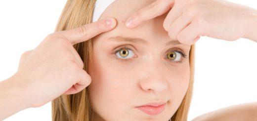 ¿Qué alimentos preferir y cuales evitar si padeces de acné?