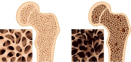 Nutrición: Novedades en la prevención de osteoporosis mediante la alimentación