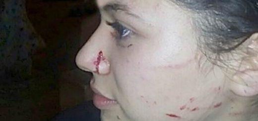 Bullying en Santo Tomé: golpearon y le cortaron el rostro a una joven