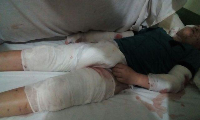 Andresito: un niño discapacitado fue ferozmente atacado por perros y piden se lo traslade a Posadas