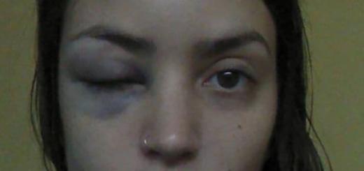 Quisieron violarla a metros de la 9 de Julio, la golpearon y recibió una insólita respuesta de la Policía