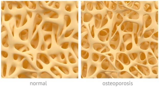 Cómo prevenir la osteoporosis, una de las enfermedades más frecuentes en los últimos tiempos