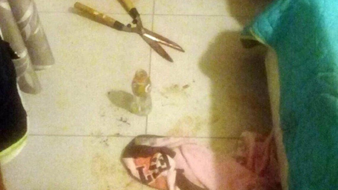 Una joven cordobesa le cortó el miembro a su amante con una tijera de podar mientras dormía