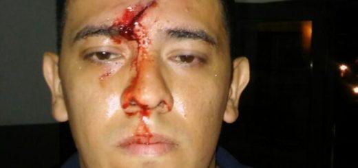 Hirieron con un casco a un oficial de la Policía que quiso mediar en una pelea de pareja