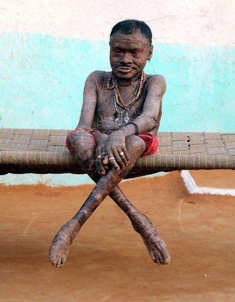 """""""Hombre serpiente"""": conmoción por la vida de un hombre que padece una enfermedad que regenera su piel cada 10 días"""