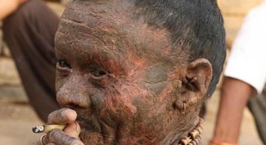 «Hombre serpiente»: conmoción por la vida de un hombre que padece una enfermedad que regenera su piel cada 10 días