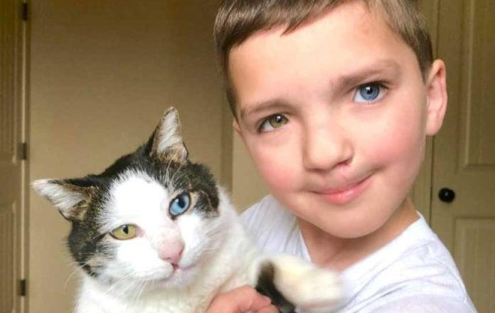 Niño adoptó a un gato con su misma condición de ojos y labio leporino y hoy son amigos inseparables