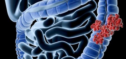 9 de cada 10 casos de cáncer de colon empiezan con pólipos, mirá cómo prevenirlo