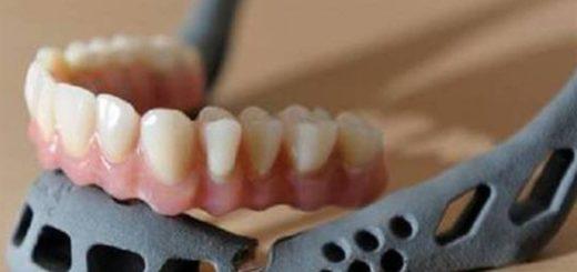 Un niño chino recibió el primer trasplante de una mandíbula 3D