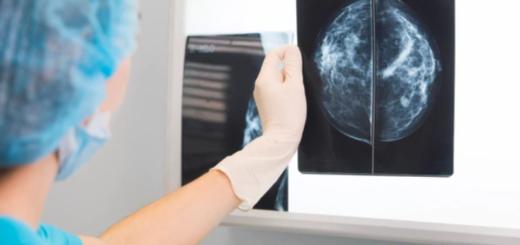 Cáncer de mama: descubren los primeros indicadores para pronosticar el tipo más agresivo