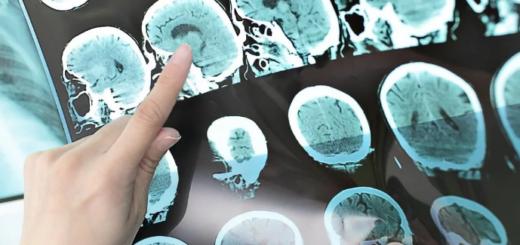 Nuevos avances en el tratamiento de la esclerosis múltiple