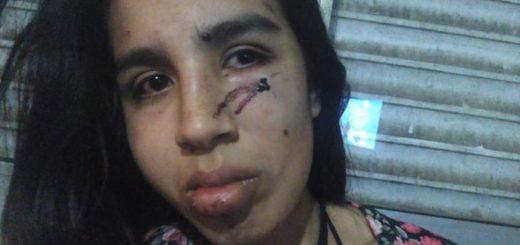 """Una joven denunció que su ex novio la estranguló y golpeó: """"Te amo pero voy a ir preso porque tengo que matarte"""""""