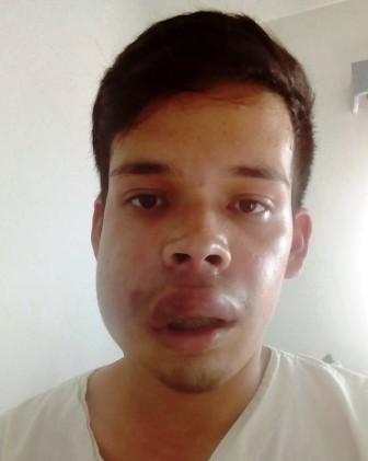 Está delicado un joven misionero que fue picado por una araña en Brasil