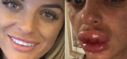 El impactante relato de una mujer que terminó en el hospital tras haberse inyectado bótox en los labios