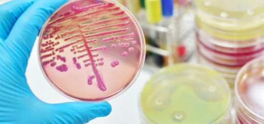Descubren una bacteria que podría ser clave en el desarrollo del Alzheimer