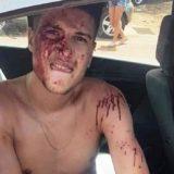#AfterFatalEnPosadas: confirmaron que el hombre de 31 años que murió estuvo preso por narcotráfico