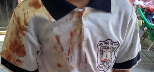 La estremecedora imagen que compartió una madre para denunciar el acoso que sufre su hijo en la escuela