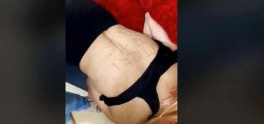 Caso María Cash: volvieron a atacar a la testigo, le tajearon la espalda con un cuchillo