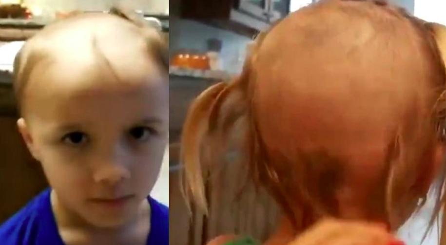 Travesura viral en redes: dos hermanitos encontraron una afeitadora y jugaron a la peluquería
