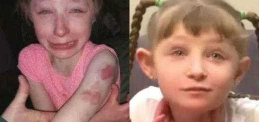 Una nena de 10 años fue brutalmente mordida por una compañera de clase