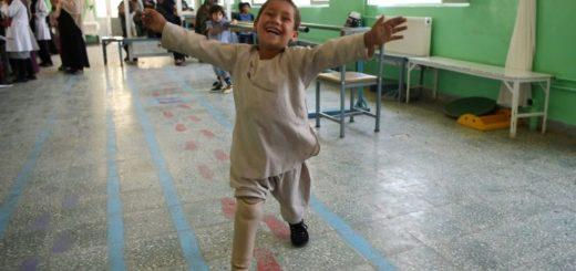 Emocionante: la alegría de un niño afgano al bailar con su nueva pierna ortopédica