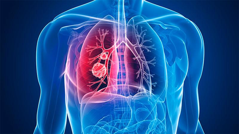 La ANMAT aprobó un fármaco que elimina rastros de cáncer de pulmón en gran porcentaje