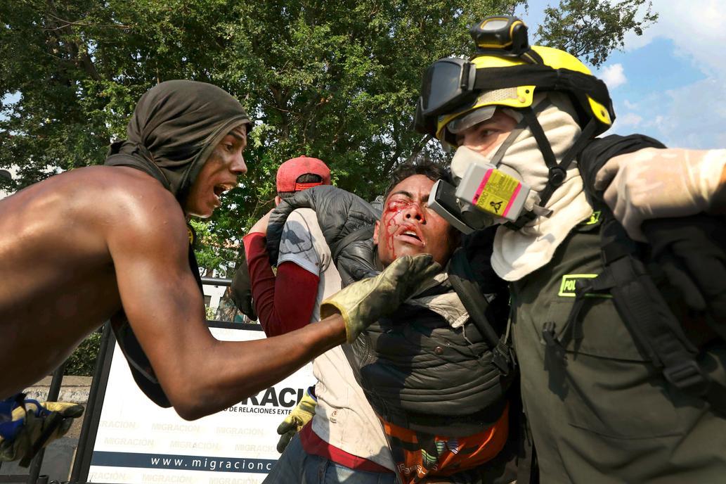 Son 69 Los Heridos Reportados Durante La Jornada De