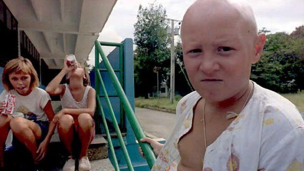 Los niños de Chernobyl: la historia de los afectados por la catástrofe nuclear que recibieron tratamiento en Cuba