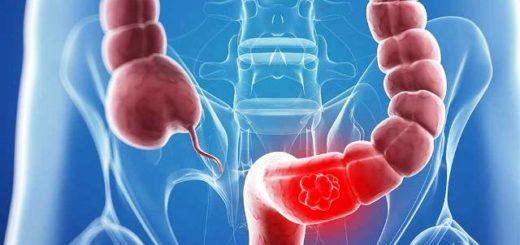Cáncer de colon: ¿prevenible desde la alimentación?