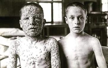 La foto que recorre el mundo: fue tomada en 1892 y exhibe dos niños con viruela, uno vacunado y el otro no