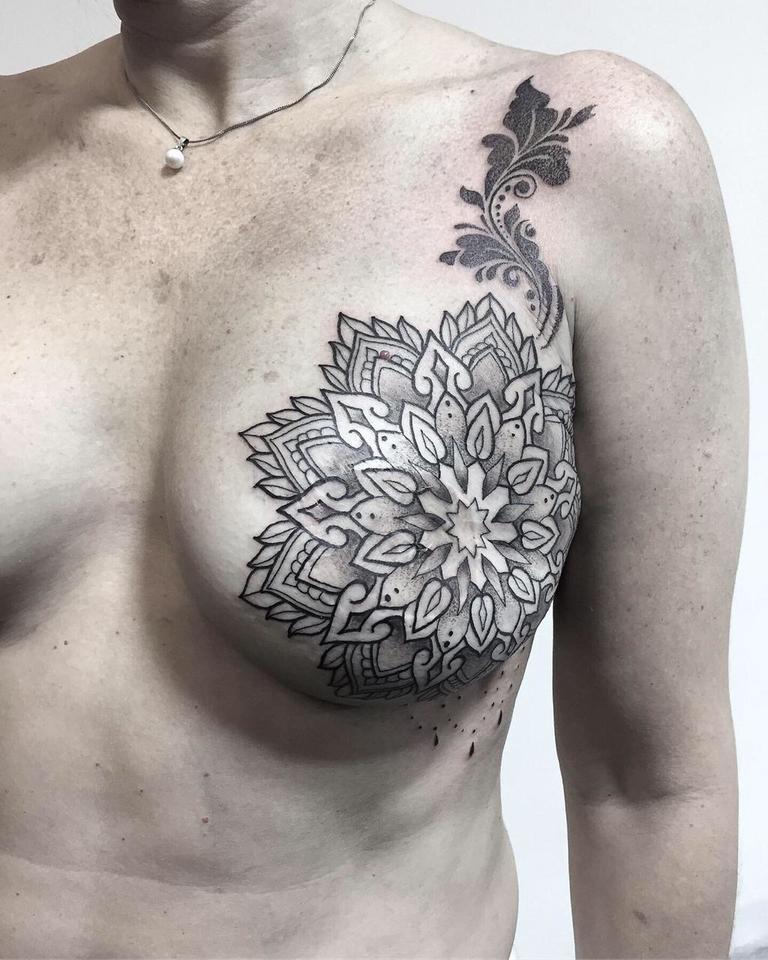En Misiones una tatuadora trabaja solidariamente para cubrir las cicatrices que deja el cáncer de mama
