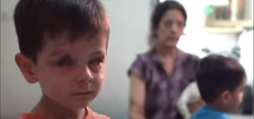 La devastadora historia de Jouma, el niño de 4 años cuyo rostro fue desfigurado por un ataque aéreo en Siria