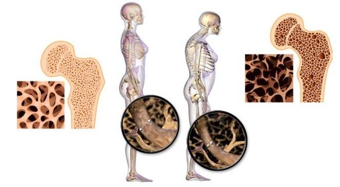 Osteoporosis: ¿Cómo prevenirla desde la alimentación?