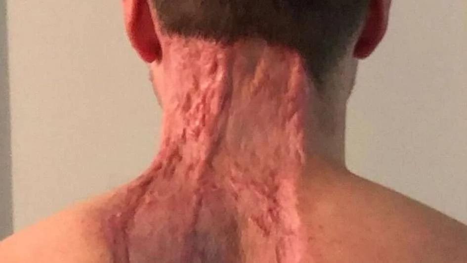 mancha dolorosa en la piel