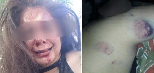 Violencia de género en Santiago del Estero: ella le pidió explicaciones por una infidelidad  y él le dio una paliza brutal