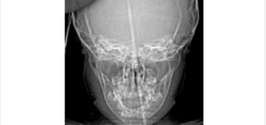 Una nena de 3 años jugaba con una aguja de tejer y se la incrustó en el cerebro