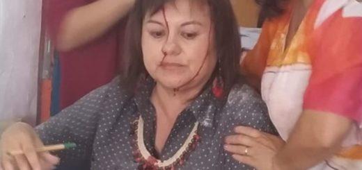 Buenos Aires: cayó la mampostería del techo de una escuela sobre una docente que daba clases