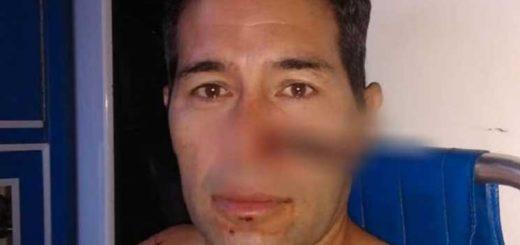 Rosario: un hombre le clavó un cuchillo en la cara a la pareja de su ex en la puerta de un hotel alojamiento