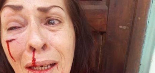 Posadas: en medio de una disputa familiar por un terreno, un hombre golpeó brutalmente a su cuñada